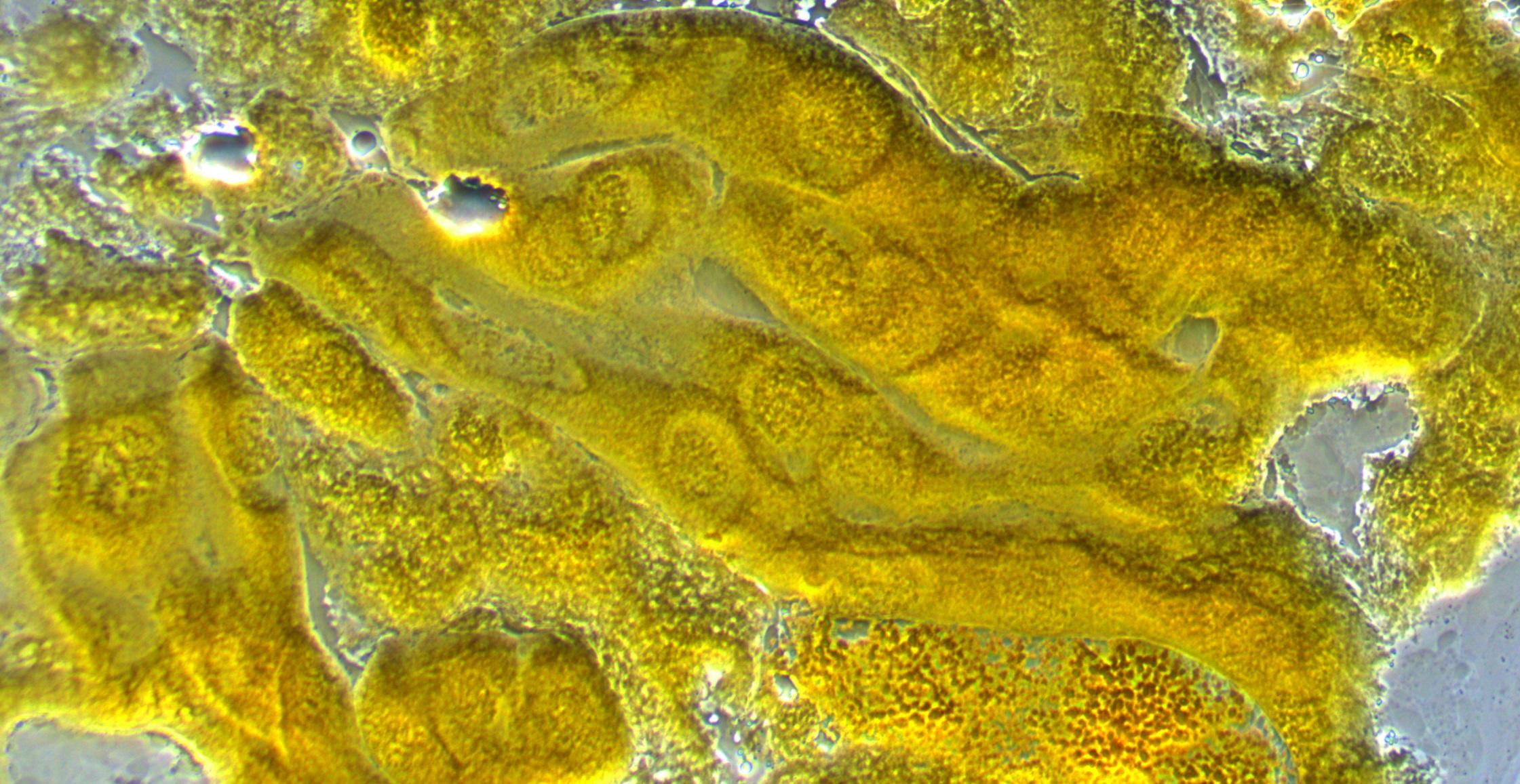 dmel-polytene-2014-07-28-11-55-11-cells