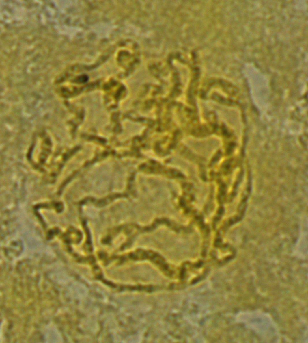dmel-polytene-2014-07-28-11-59-22-chromosomes
